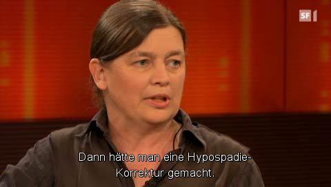 Dann hätte man eine Hypospadie-Korrektur gemacht.