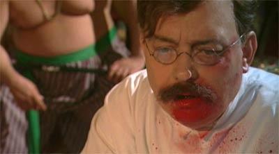Filmbild: Hirschfeld operiert mit Blut im Gesicht