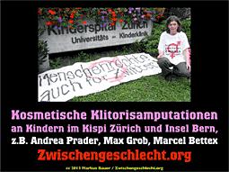 Kosmetische Klitorisamputationen an Kindern im Kispi Zürich und Insel Bern, z.B. Andrea Prader, Max Grob, Marcel Bettex, von Zwischengeschlecht.org